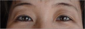 眼瞼下垂:術後2