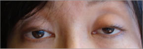 眼瞼下垂:術前1