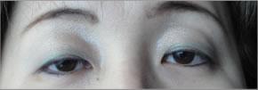 眼瞼下垂:術前2