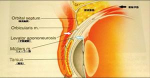眼瞼イメージ2