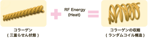 GFR初期効果