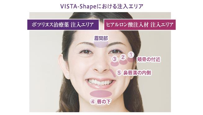 vista-shape_img_03